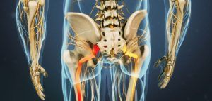 Sciatic Pain and Chiropractic Townsville